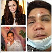 Take the Poll.  Deniece Cornejo and Cedric Lee vs. Vhong Navarro